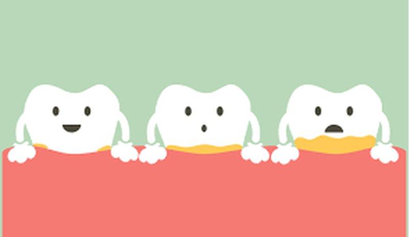 دراسة: عدم نظافة الفم تسرع من انتشار سرطان القولون