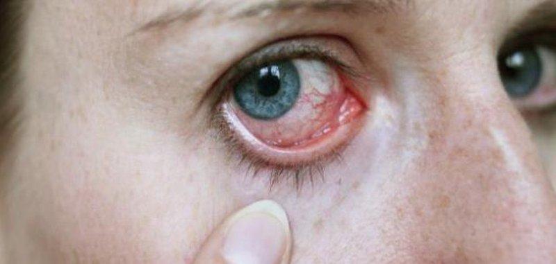 ما هي الأمراض التي تكشف عنها العين ؟