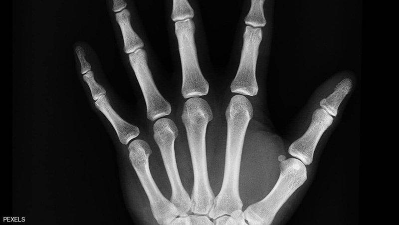 كيف تحمي عظامك مع تقدمك في العمر