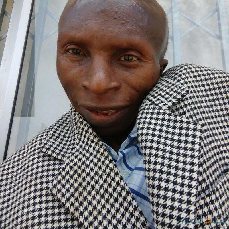 قصة رجل يعاني من حالة نادرة تحوله إلى حجر