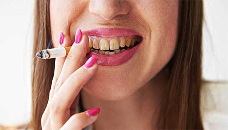 ليس فقط التدخين ..7 أطعمة لها نفس تأثير السجائر على صحة أسنانك