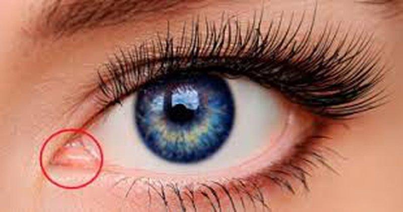 اعرف جسمك.. ثنية ملتحمة العين كيف تسيل الدموع من عينك
