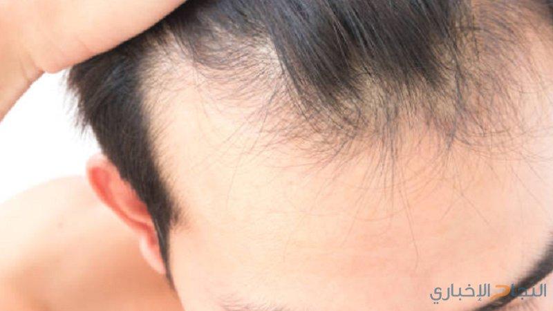 اكتشاف سبب توقف نمو الشعر مع تقدم العمر!
